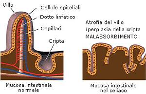 immagine 5a mucosa intestinale nel celiaco